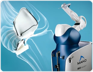 RIO Robotic Arm Interactive Orthopedic System Available for Total Hip Arthroplasty